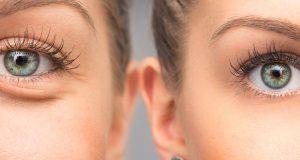 Siła duszy tkwi w oczach – jak odświeżyć spojrzenie